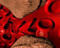 «Лечение нарушений метаболизма липидов.  Профилактика и лечение тромбоэмболии».